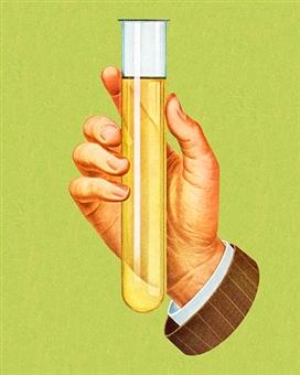 Analisi delle urine: per VISITA SPORTIVA, PER GRAVIDANZA, URINOCOLTURA
